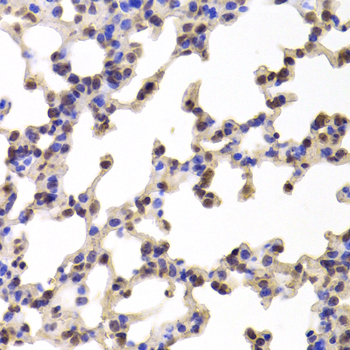 Complement C1R Antibody - Immunohistochemistry of paraffin-embedded Mouse lung tissue.