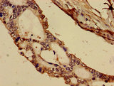 Immunohistochemistry image of paraffin-embedded human pancreatic cancer at a dilution of 1:100