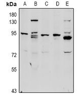 Complement C1R Antibody - Western blot analysis of Complement C1R HC expression in Hela (A), HepG2 (B), MEF (C), C6 (D), U87MG (E) whole cell lysates.