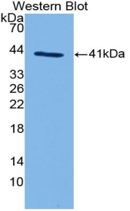 Western blot of recombinant Complement C3a.