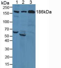 Western Blot; Sample: Lane1: Human Liver Tissue; Lane2: Human Lung Tissue; Lane3: Human Serum.