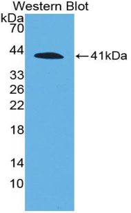 Western blot of recombinant C4 / Complement C4a.