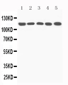 WB of Complement C5 antibody. All lanes: Anti-C5a at 0.5ug/ml. Lane 1: Rat Liver Tissue Lysate at 40ug. Lane 2: Mouse Liver Tissue Lysate at40ug. Lane 3: NIH Whole Cell Lysate at 40ug. Lane 4: HEPA Whole Cell Lysate at 40ug. Lane 5: PC12 Whole Cell Lysate at 40ug. Predicted bind size: 115KD. Observed bind size: 115KD.