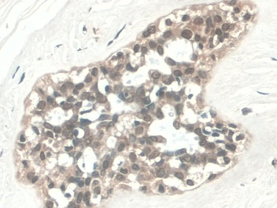 DAB staining on IHC-P; Samples: Human Pancreatic cancer Tissue