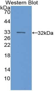 Western blot of recombinant Complement C6.
