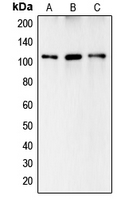 Western blot analysis of Complement C6 expression in HeLa (A); HepG2 (B); A549 (C) whole cell lysates.