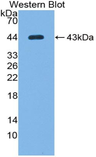 Western blot of recombinant Complement C7.