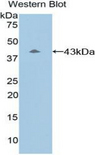 Western blot of recombinant Complement C8B.  This image was taken for the unconjugated form of this product. Other forms have not been tested.