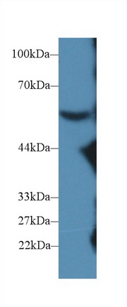 Western Blot; Sample: Mouse Serum; Primary Ab: 2µg/ml Rabbit Anti-Mouse C8b Antibody Second Ab: 0.2µg/mL HRP-Linked Caprine Anti-Rabbit IgG Polyclonal Antibody