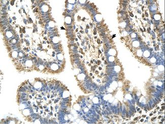 C8B antibody C8B(complement component 8, beta polypeptide) Antibody was used in IHC to stain formalin-fixed, paraffin-embedded human intestine.  This image was taken for the unconjugated form of this product. Other forms have not been tested.