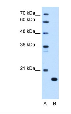 Lane A: Marker. Lane B: HepG2 cell lysate. Antibody concentration: 0.25 ug/ml. Gel concentration: 12%.  This image was taken for the unconjugated form of this product. Other forms have not been tested.