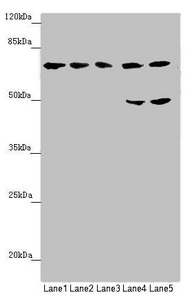 Western blot All Lanes:C8B antibody at 1.28 ug/ml Lane 1: Hela whole cell lysate Lane 2: Jurkat whole cell lysate Lane 3: HepG-2 whole cell lysate Lane 4: Raji whole cell lysate Lane 5: Mouse liver tissue Secondary Goat polyclonal to rabbit IgG at 1/10000 dilution Predicted band size: 67 kDa Observed band size: 67,50 kDa