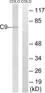Western blot analysis of lysates from COLO cells, using C9 Antibody. The lane on the right is blocked with the synthesized peptide.