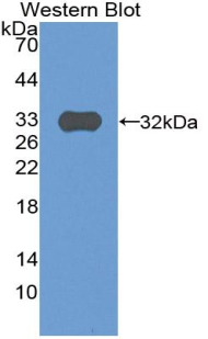 Western blot of recombinant Complement C9.