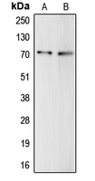 Western blot analysis of Complement C9 expression in HepG2 (A); THP1 (B) whole cell lysates.