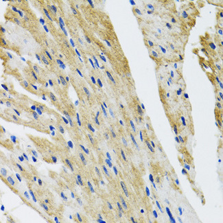 Immunohistochemistry of paraffin-embedded mouse heart tissue.