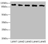 Western blot All Lanes: COPB2 antibody at 2.51ug/ml Lane 1: Human placenta tissue Lane 2: MCF7 whole cell lysate Lane 3: Hela whole cell lysate Lane 4: HepG-2 whole cell lysate Lane 5: Jurkat whole cell lysate Secondary Goat polyclonal to rabbit IgG at 1/10000 dilution Predicted band size: 103,100 kDa Observed band size: 102 kDa