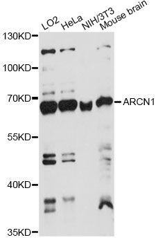 COPD / ARCN1 Antibody - Western blot analysis of extracts of various cell lines, using ARCN1 antibody at 1:1000 dilution. The secondary antibody used was an HRP Goat Anti-Rabbit IgG (H+L) at 1:10000 dilution. Lysates were loaded 25ug per lane and 3% nonfat dry milk in TBST was used for blocking. An ECL Kit was used for detection and the exposure time was 60s.