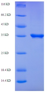 S-norcoclaurine synthase 2 (PR10A) Protein