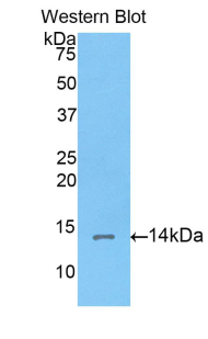 CORIN Antibody - Western blot of recombinant CORIN.  This image was taken for the unconjugated form of this product. Other forms have not been tested.