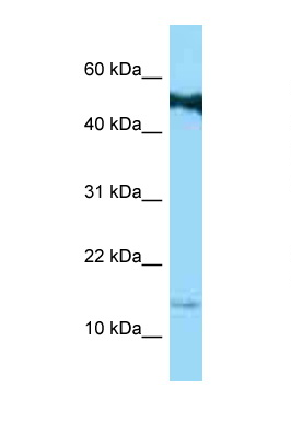 SPRR1B antibody Western blot of Jurkat Cell lysate. Antibody concentration 1 ug/ml.  This image was taken for the unconjugated form of this product. Other forms have not been tested.