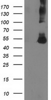 CORO1A / Coronin 1a Antibody - HEK293T cells were transfected with the pCMV6-ENTRY control (Left lane) or pCMV6-ENTRY CORO1A (Right lane) cDNA for 48 hrs and lysed. Equivalent amounts of cell lysates (5 ug per lane) were separated by SDS-PAGE and immunoblotted with anti-CORO1A.