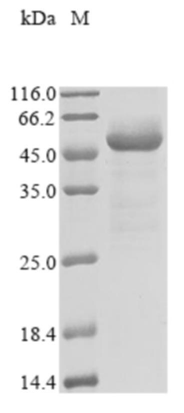 SARS-CoV-2 Nucleoprotein Protein - (Tris-Glycine gel) Discontinuous SDS-PAGE (reduced) with 5% enrichment gel and 15% separation gel.