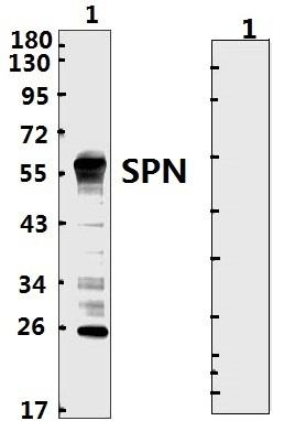 SARS-CoV-2 Nucleoprotein Protein