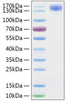 SARS-CoV-2 S1 Protein - Recombinant 2019-nCoV Spike S1 Protein was determined by SDS-PAGE with Coomassie Blue, showing a band at 130-160 kDa.