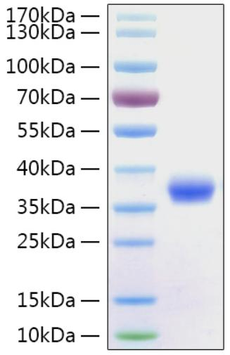 SARS-CoV-2 Spike Glycoprotein Protein - Recombinant 2019-nCoV Spike RBD Protein was determined by SDS-PAGE with Coomassie Blue, showing a band at 36 kDa.
