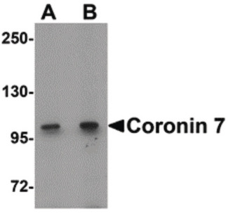 Western blot of Coronin 7 in rat lung tissue lysate with Coronin 7 antibody at (A) 1 and (B) 2 ug/ml.