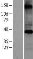 COX10 Protein - Western validation with an anti-DDK antibody * L: Control HEK293 lysate R: Over-expression lysate