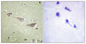 IHC of paraffin-embedded human brain tissue, using COX15 Antibody. The sample on the right was incubated with synthetic peptide.