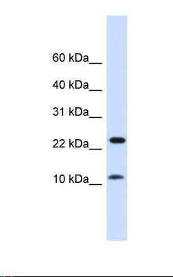 Fetal muscle lysate. Antibody concentration: 1.0 ug/ml. Gel concentration: 10-20%.  This image was taken for the unconjugated form of this product. Other forms have not been tested.