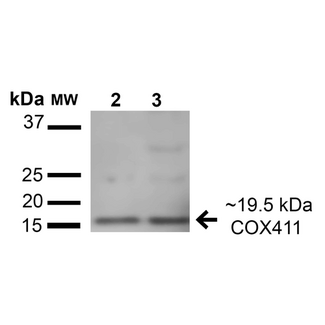 COX4 Antibody - Western blot analysis of Human HeLa and HEK293T cell lysates showing detection of 19.5 kDa COX-4 protein using Rabbit Anti-COX-4 Polyclonal Antibody. Lane 1: Molecular Weight Ladder (MW). Lane 2: HeLa cell lysates. Lane 3: 293Trap cell lysates. Load: 15 µg. Block: 5% Skim Milk in 1X TBST. Primary Antibody: Rabbit Anti-COX-4 Polyclonal Antibody  at 1:1000 for 1 hour at RT. Secondary Antibody: Goat Anti-Rabbit HRP at 1:2000 for 60 min at RT. Color Development: ECL solution for 6 min in RT. Predicted/Observed Size: 19.5 kDa.
