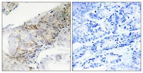 IHC of paraffin-embedded human breast carcinoma tissue, using COX5B Antibody. The sample on the right was incubated with synthetic peptide.