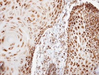 COXG / COX6B1 Antibody - IHC of paraffin-embedded BCC3 xenograft using COX6B1 antibody at 1:100 dilution.