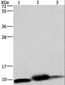 COXG / COX6B1 Antibody - Western blot analysis of Mouse heart, human fetal liver and hepatocellular carcinoma tissue,, using COX6B1 Polyclonal Antibody at dilution of 1:1150.