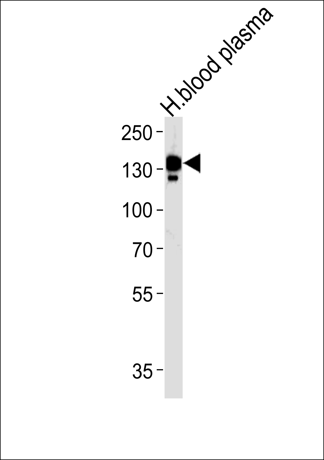 CP Antibody western blot of human blood plasma tissue lysates (35 ug/lane). The CP antibody detected the CP protein (arrow).