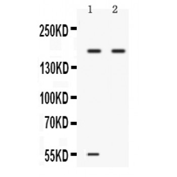 Western blot analysis of Ceruloplasmin expression in 22RV1 whole cell lysates (lane 1) and A549 whole cell lysates (lane 2). Ceruloplasmin at 180 kD was detected using rabbit anti- Ceruloplasmin Antigen Affinity purified polyclonal antibody at 0.5 ug/mL. The blot was developed using chemiluminescence (ECL) method.