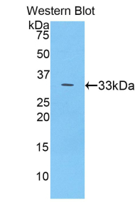 Western blot of recombinant CP / Ceruloplasmin.  This image was taken for the unconjugated form of this product. Other forms have not been tested.