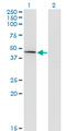 Western Blot analysis of CPA1 expression in transfected 293T cell line by CPA1 monoclonal antibody (M01), clone 3F11.Lane 1: CPA1 transfected lysate(47.1 KDa).Lane 2: Non-transfected lysate.