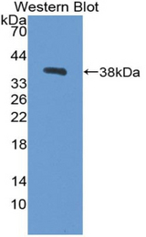 Western blot of recombinant CPB / Carboxypeptidase B.
