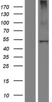 CPB2 / TAFI Protein - Western validation with an anti-DDK antibody * L: Control HEK293 lysate R: Over-expression lysate