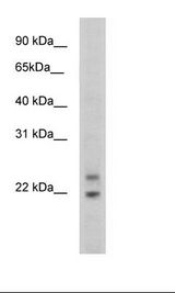 Cphx Antibody - SP2/0 Cell Lysate.  This image was taken for the unconjugated form of this product. Other forms have not been tested.