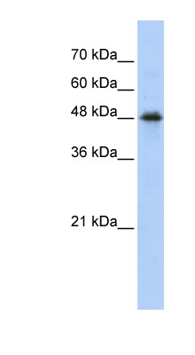 CPN1 antibody LS-B5828 Western blot of Transfected 293T cell lysate.  This image was taken for the unconjugated form of this product. Other forms have not been tested.
