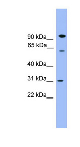 CPNE6 antibody LS-C135524 Western blot of Fetal Brain lysate.  This image was taken for the unconjugated form of this product. Other forms have not been tested.
