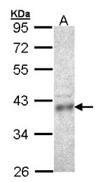 Sample (30 ug of whole cell lysate). A: HCT116 10% SDS PAGE. CPOX antibody diluted at 1:1000.