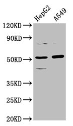 Positive Western Blot detected in HepG2 whole cell lysate, A549 whole cell lysate. All lanes: CPOX antibody at 5.7 µg/ml Secondary Goat polyclonal to rabbit IgG at 1/50000 dilution. Predicted band size: 51, 31 KDa. Observed band size: 51 KDa