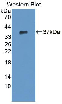 CPSF160 / CPSF1 Antibody - Western blot of CPSF160 / CPSF1 antibody.